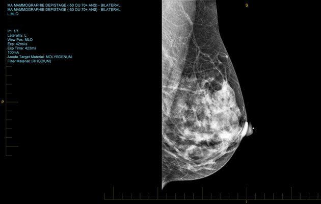 Mammografiassa ja lääkärissä kannattaa tutkituttaa rintojen terveys säännöllisesti.