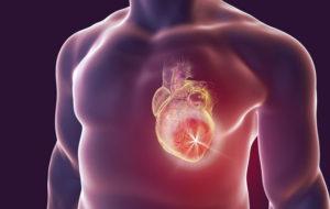 Tutkimusten mukaan sydänkohtaus tulee entistä harvemmin maananataisin.