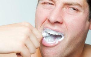Kuiva suu