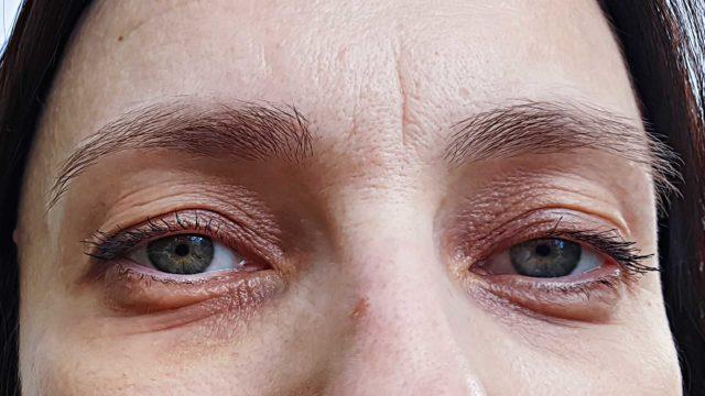 Onko tummista silmänalusista syytä huolestua?
