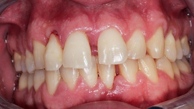 Hampaan kiinnityskudossairaus eli parodontiitti synnyttää edetessään pysyviä kudosvaurioita. Parodontiitti ei yleensä aiheuta kipua, joten se voi huomaamattomana edetä pitkälle.