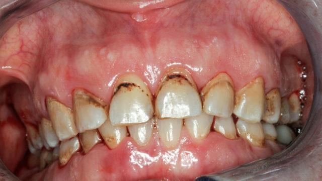 Tupakka moninkertaistaa riskin sairastua hampaiden kiinnityskudossairauteen eli parodontiittiin. Muita tupakoinnin haittavaikutuksia ovat värjäytymät, karvakieli ja pahanhajuinen hengitys.