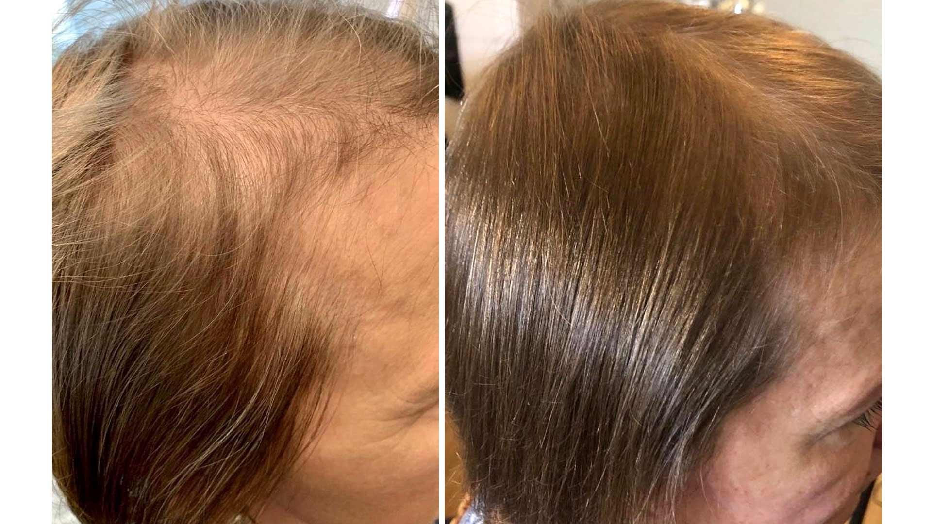 Hiukset ennen ja jälkeen.