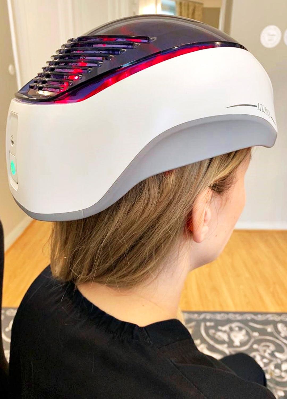Hiuspohjan laserhoito