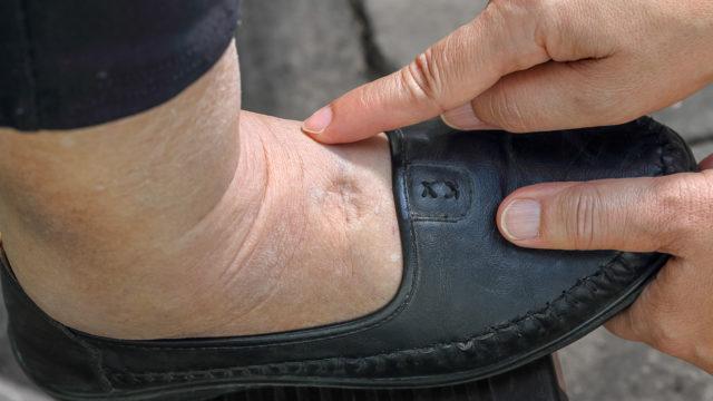 Diabeteshoitojen saatavuus eri puolella maata vaihtelee.