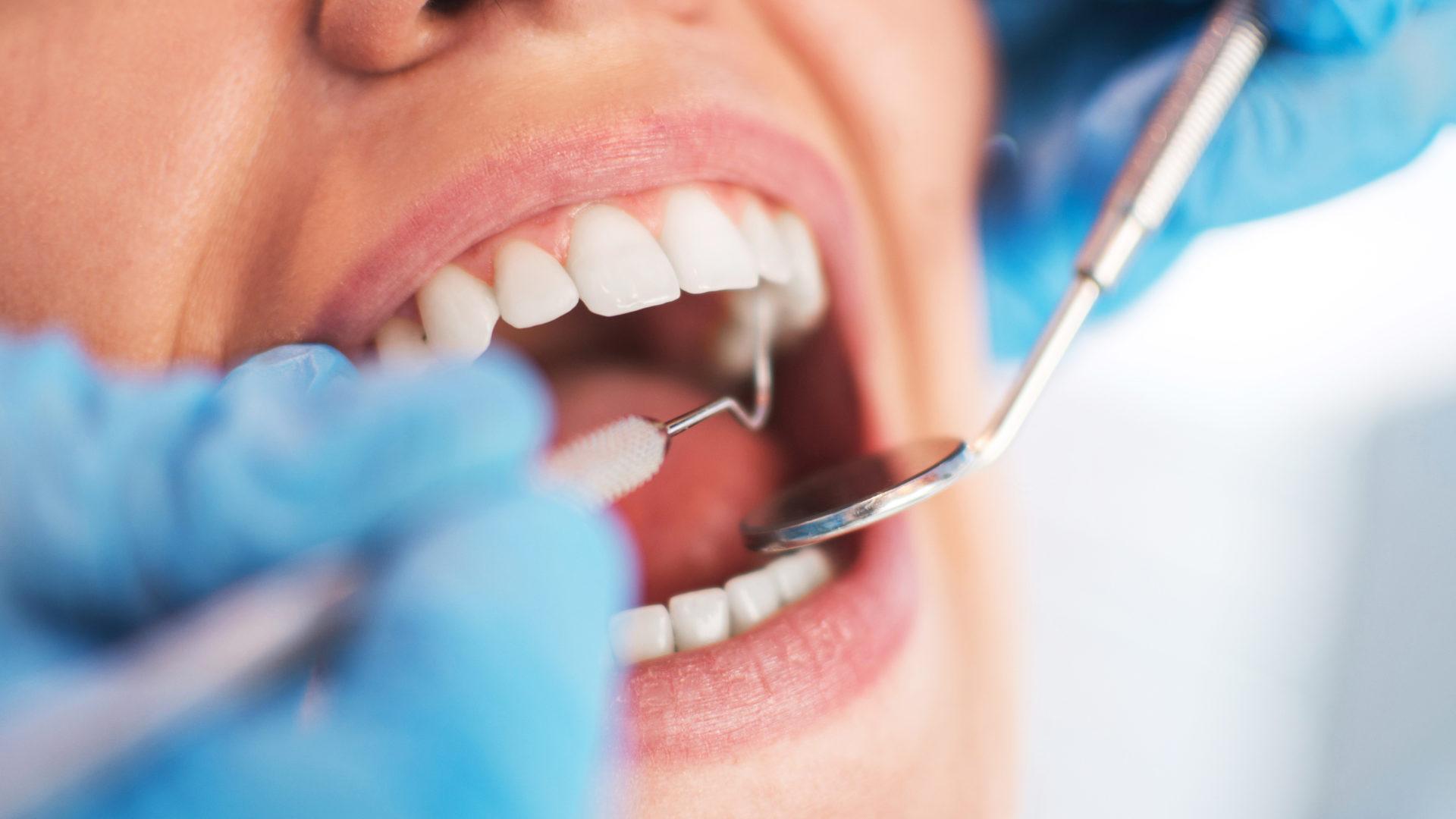Poskiontelotulehdus voi alkaa hampaiden juurien tulehduksesta.