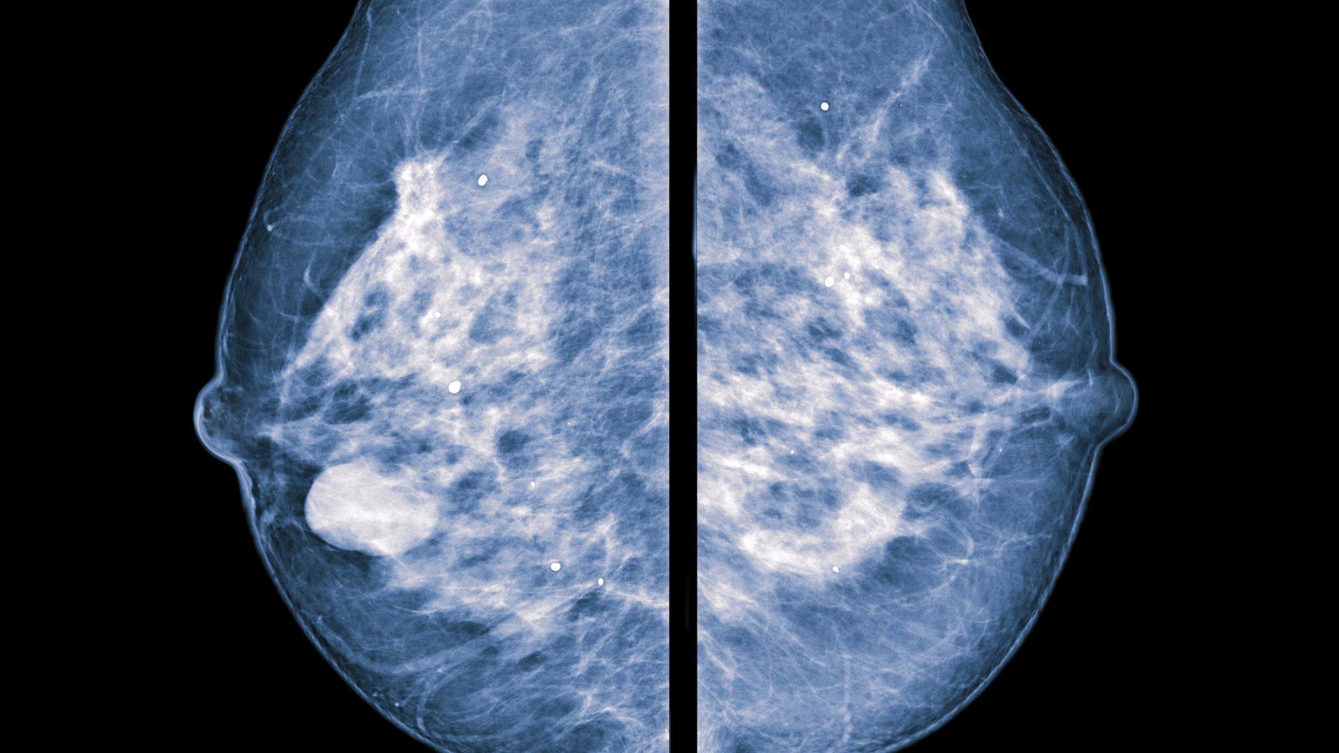 Tunteva rinta on monen rintasyövästä selvinneen elämänlaadun kohottaja.