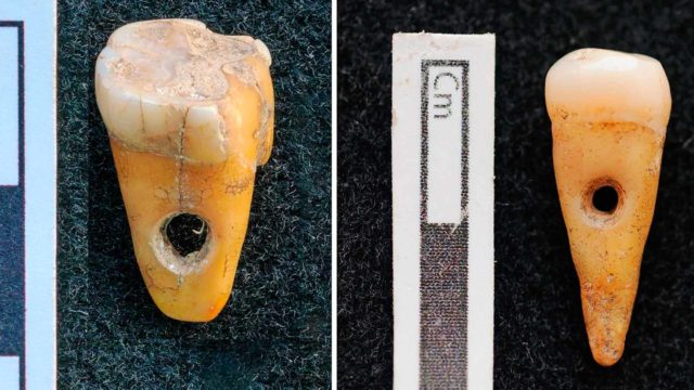 Hampaat olivat peräisin kahdelta noin 30–50 vuotiaalta henkilöltä