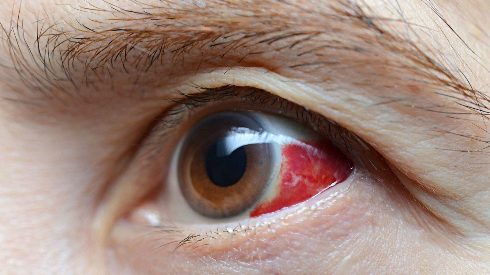 Verisuonen Katkeaminen Silmästä