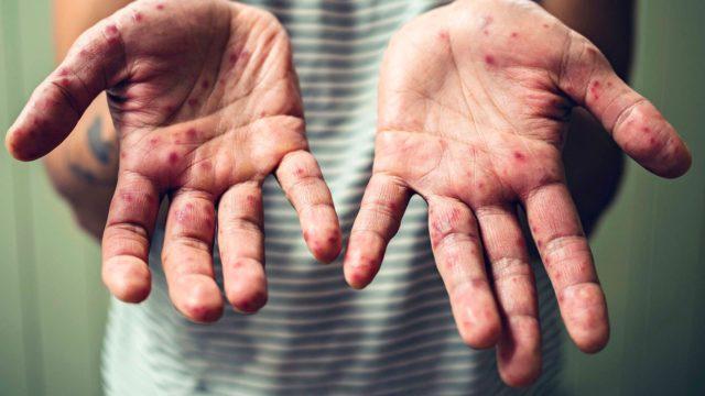 Vain osa sairastuneista saa kipeitä rakkuloita käsiinsä, jalkoihinsa ja suuhunsa.