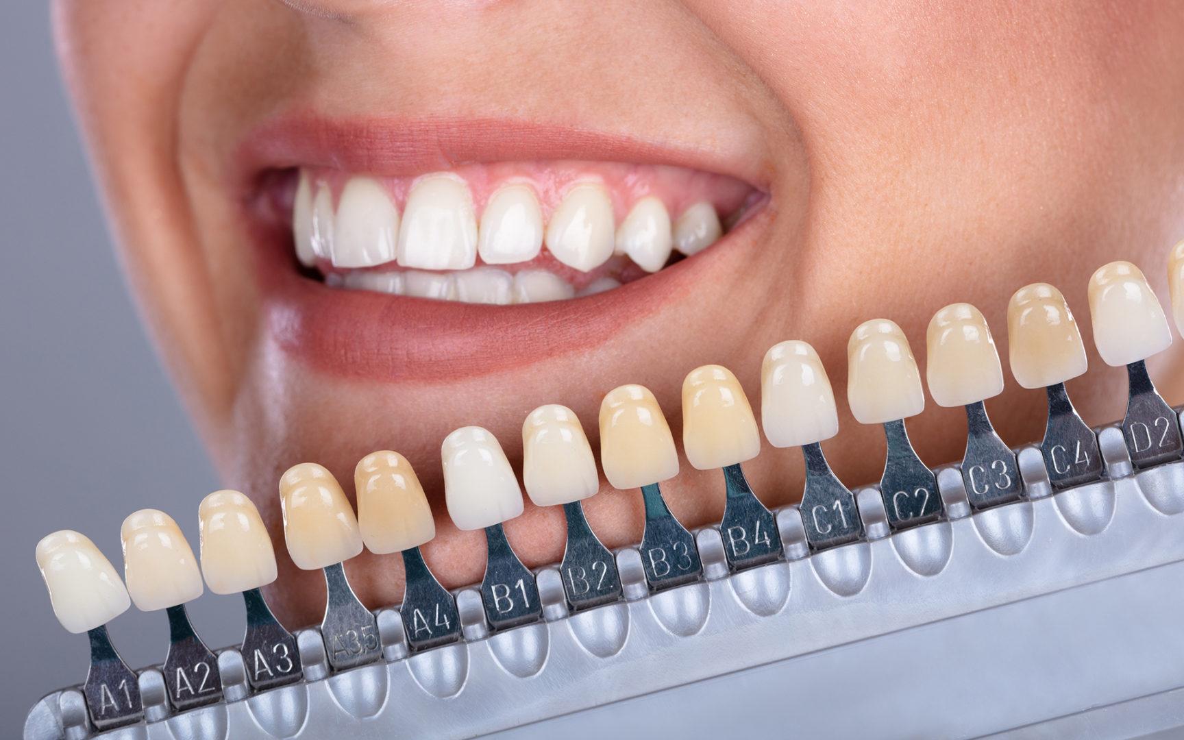 Kenelle hampaiden valkaisu sopii?